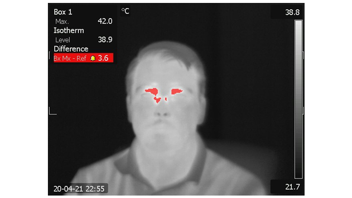 Thermal detection using computer vision